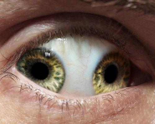 Как видят мир люди с косящим глазом?