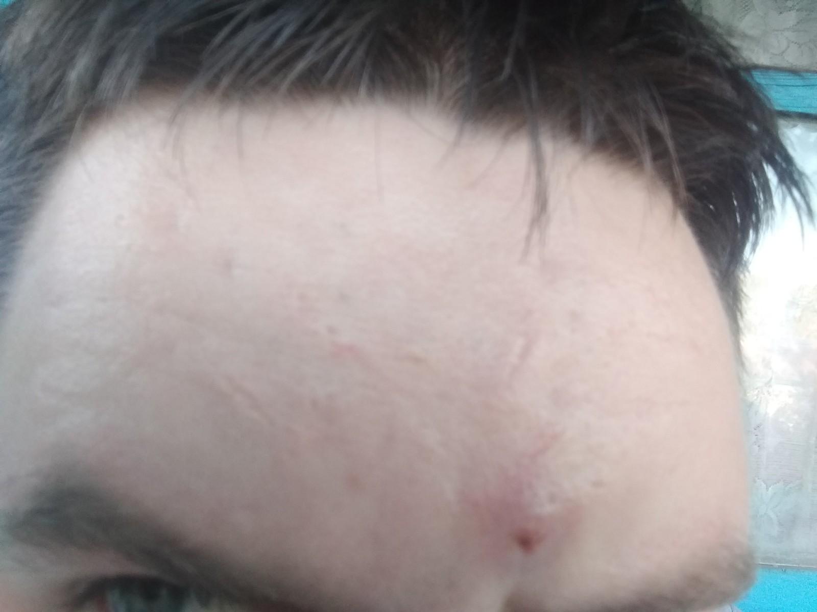 Белые точки на губах под кожей (жировики): фото снаружи и внутри ...   1200x1600
