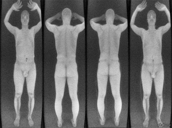 Что просвечивает рентген в аэропорту
