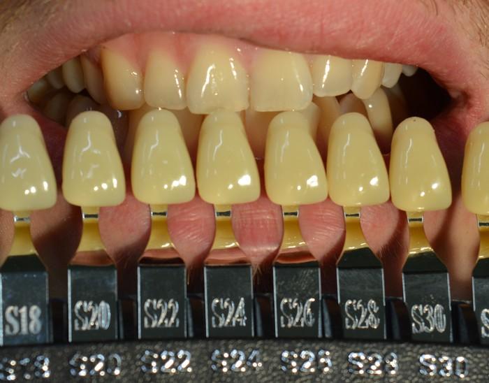 Отбеливание зубов Стоматология, Отбеливание зубов, Длиннопост