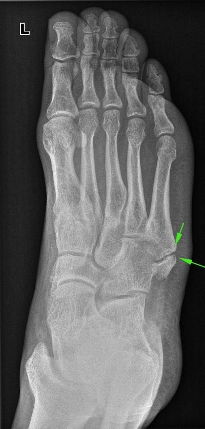 Из жизни рентгенолога. Часть 21. Люди с высоким болевым порогом и ложные суставы