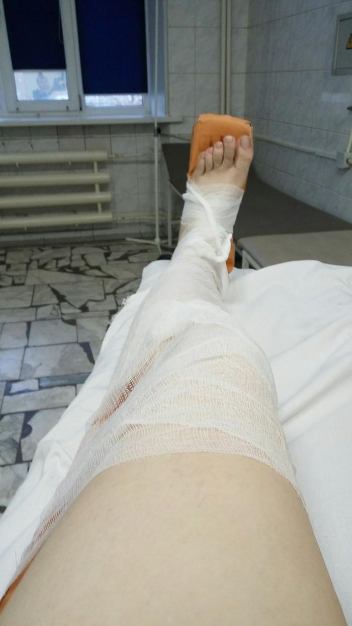 Сломал голень сняли гипс теперь болит колено замена тазобедренного сустава в казани