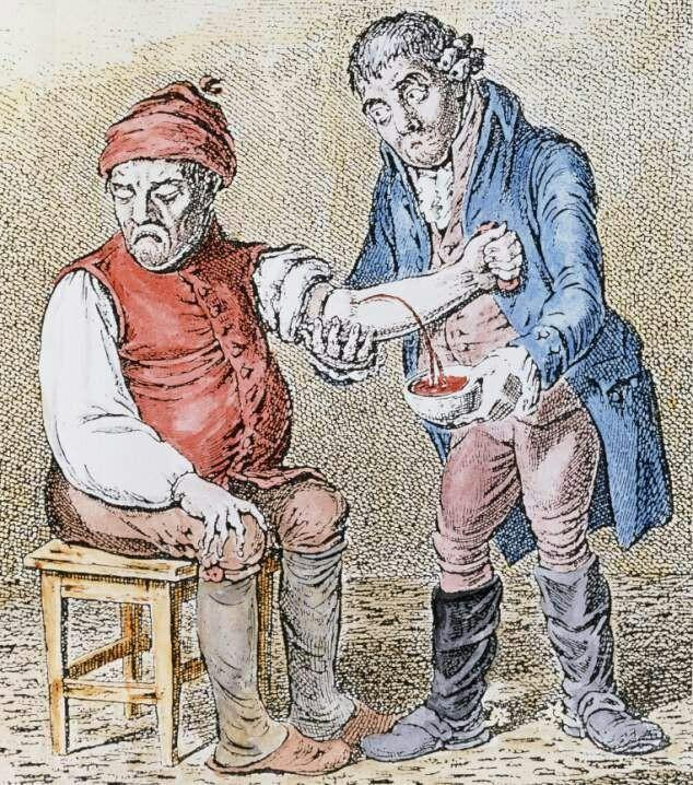 Пять ужасов средневековой медицины Медицина, средневековье, лечение, длиннопост
