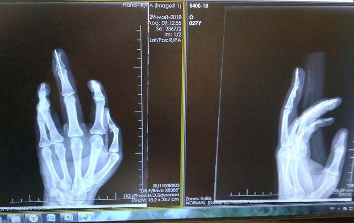 Хелп. Для тех у кого был опыт разработки пальцев. Без рейтинга, Помощь, Перелом пальца, Перелом