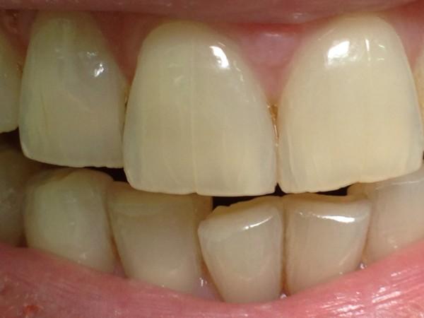 отбеливание ваш дантист