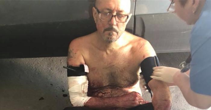В Днепре медики отказались принять мужчину с практически оторванной рукой Медики, Врачи, Украина, Днепр