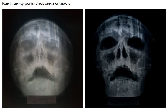 Как я вижу рентгеновский снимок