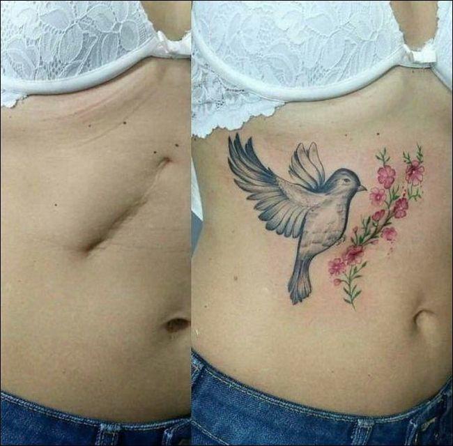 Как татуировка может преобразить место шрама