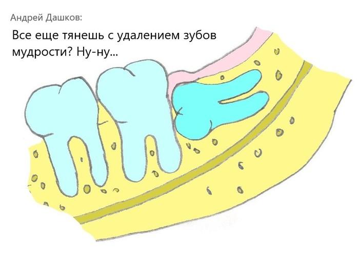 """Все еще тянешь с удалением зубов мудрости, потому что """"не болит""""? Ну-ну... Стоматология, Удаление зубов, Зубы, Зуб мудрости, Хирургия полости рта, Хирург, Медицина, Врачи, Длиннопост"""
