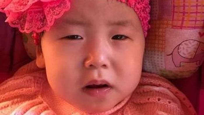 «Мы не знаем, как и чем лечить дочку». Родители двухлетней Арины из Якутии просят о помощи Якутия, Якутск, Арина, Помощь, Длиннопост