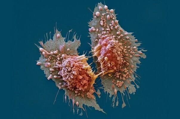 РАК КАК ОТДЕЛЬНЫЙ ОРГАНИЗМ Онкология, Цитология, Мутация, Рак, Эволюция, Человек, Вирус, ДНК, Длиннопост