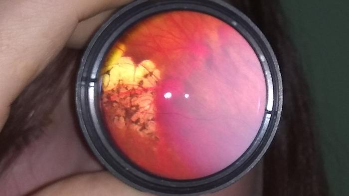 Глазное дно Глазное дно, Сетчатка, Глаза, Длиннопост