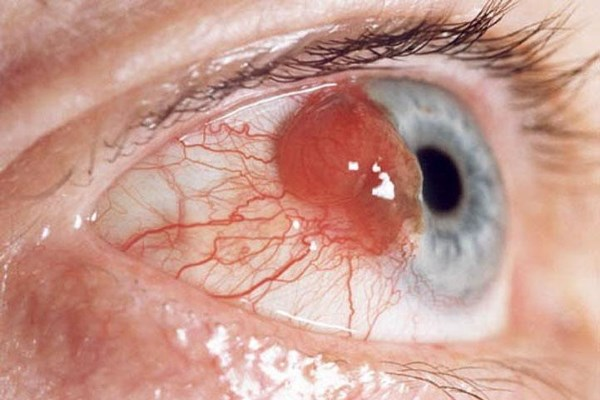 Рак тоже кушать хочет) Медицина, Онкология, Глаза, Кровеносные сосуды, Меланома, Жесть
