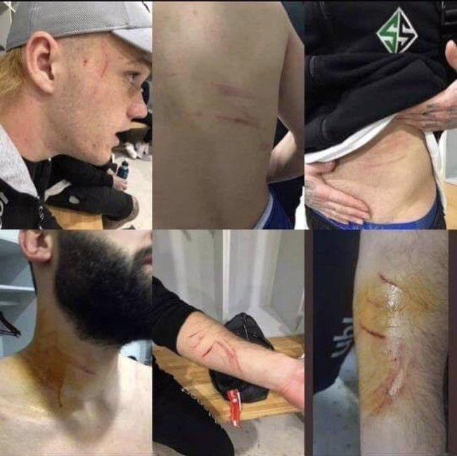 В Турции футболист вышел на поле с лезвием и резал соперников Мансур Чалар, Лезвие, Травма, Видео, Футбол, Турция