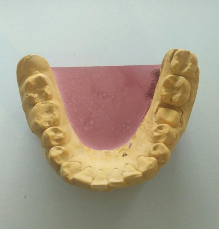 Изготовление зуботехнической коронки Стоматология, Коронка, Зуботехническая лаборатория, Изготовление, Длиннопост