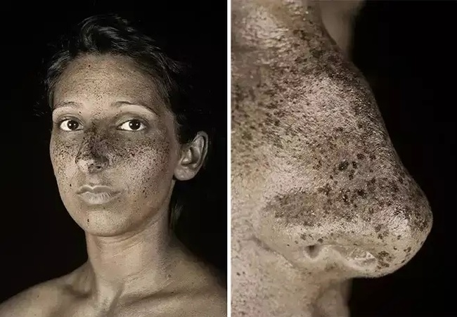 УФ-портреты показали, как солнечный свет повреждает кожу Человек, Солнце, Ультрафиолет, Кожа, Вред, Длиннопост, Фотография