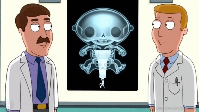 В теле татарстанца с помощью рентгена нашли три мобильных телефона. Курьер, Зона, Очко, Преступник