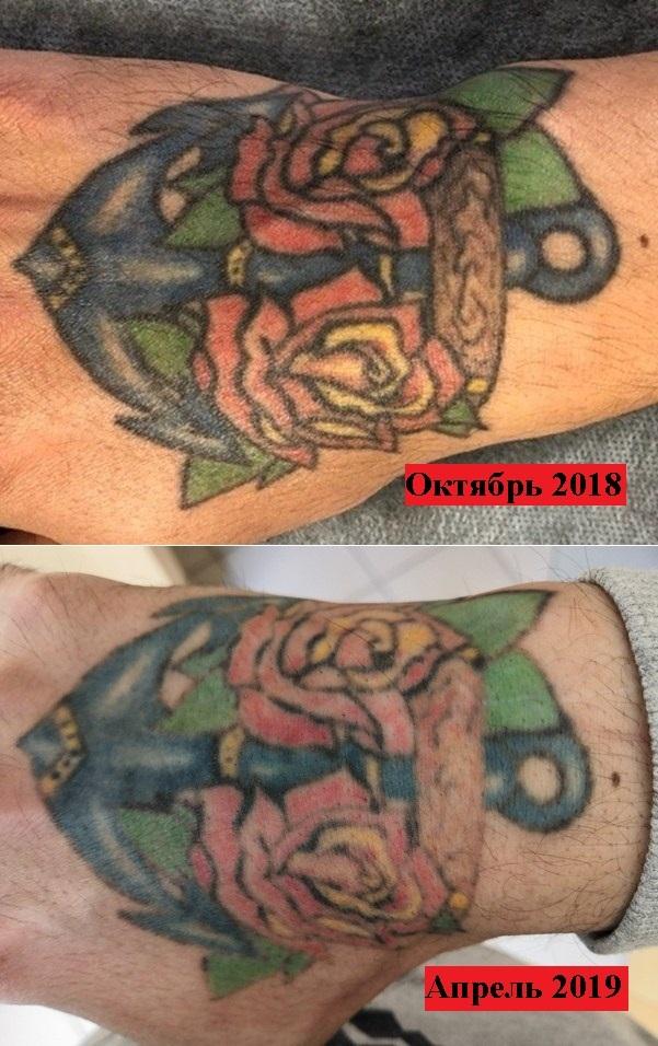 """Как удалить цветную татуировку. Пост 1.1 """"Промежуточный результат"""" Тату, Удаление татуировки, Лазерное удаление"""