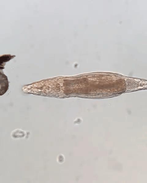 Микромир Микроорганизмы, Микроскоп, Гифка, Длиннопост, Инфузория, Коловратка, Тихоходка, Интересное