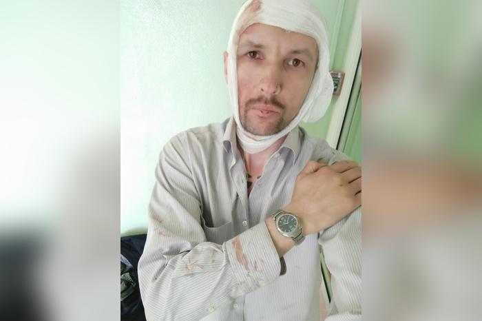 «Искусал и пытался задушить»: Таксист чудом выжил после нападения буйного клиента Такси, Алкоголь, Россия, Полиция, Яндекс, Негатив