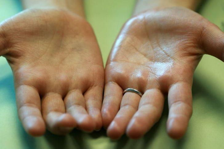 чем намазать руки чтобы не потели